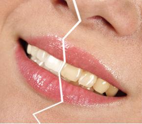 FGM WhitenessPerfect kodune hammaste valgendus