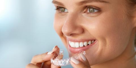 Kapevalgendus opalescence geeliga viimsi hambakliinikus